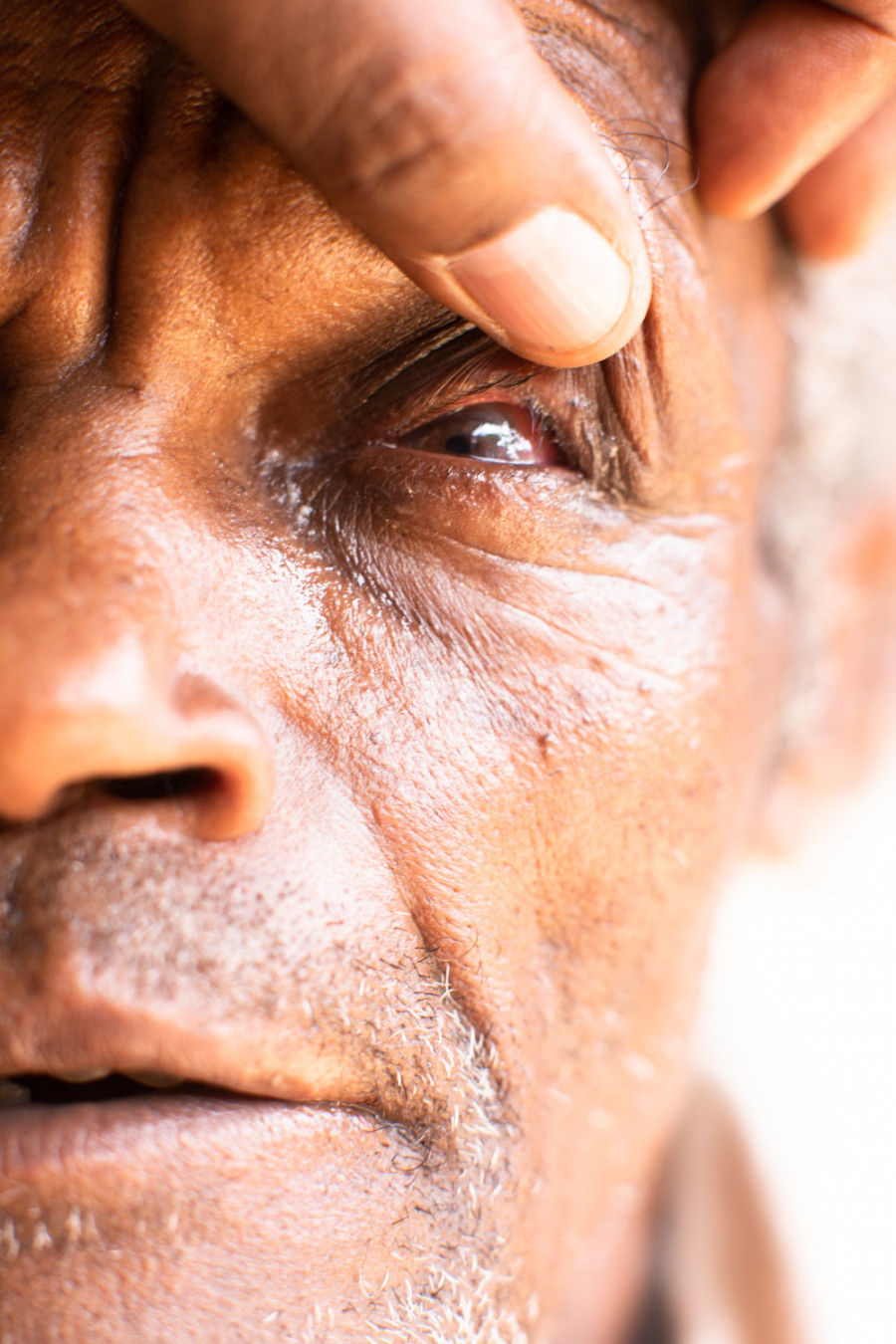 Thumbnail for Orbis and Trachoma in Ethiopia